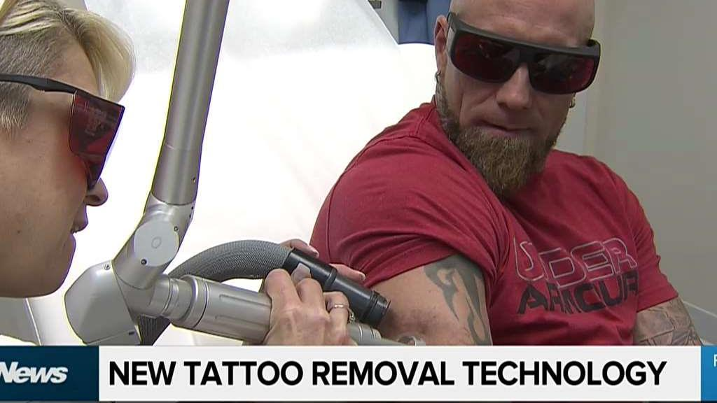 About us citynews toronto for New tattoo removal technology